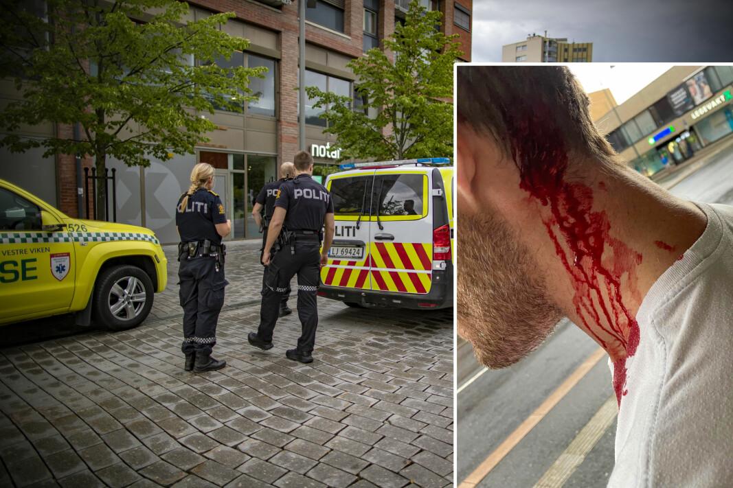 BLODIG: Slik så mannen ut etter voldsepisoden.